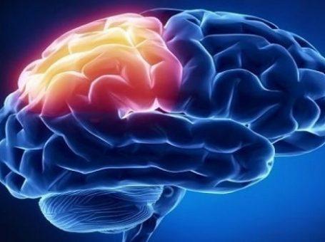 متخصص مغز و اعصاب در تهران-قائم مقام| دکتر شکوفه علایی