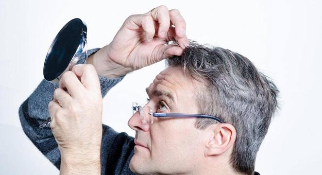 درمان سفیدی مو با طب سنتی